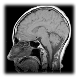 Image of a MRI of a human head